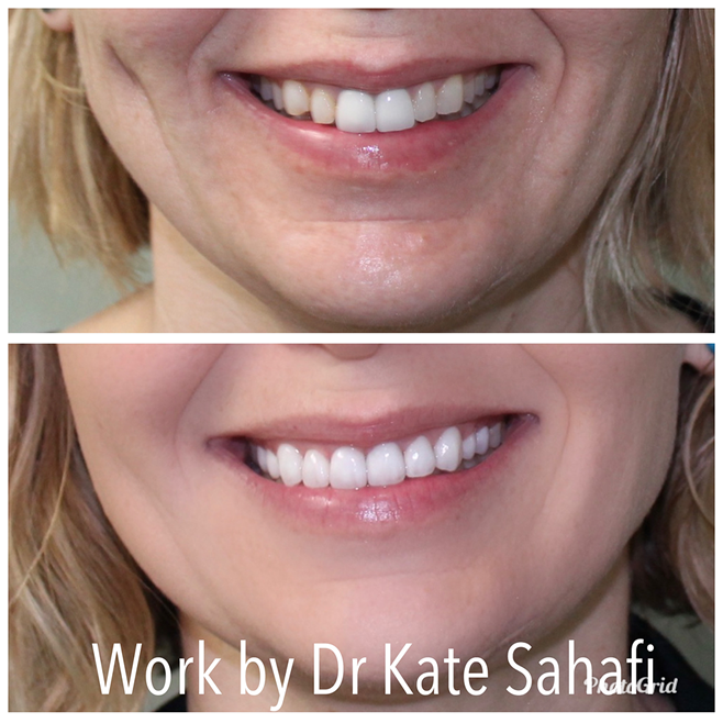 Before and after image of a patient of Dr. Kate Sahafi